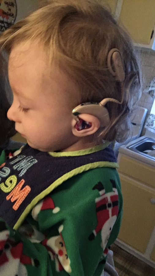 Kayden+is+wearing+his+cochlear+implants+on+the+Christmas+of+2016.+It+can+clearly+be+seen+that+their+is+one+piece+in+which+sticks+onto+the+magnet+that+was+placed+within+his+head+during+surgery+and+another+part+in+which+hooks+onto+his+ear.